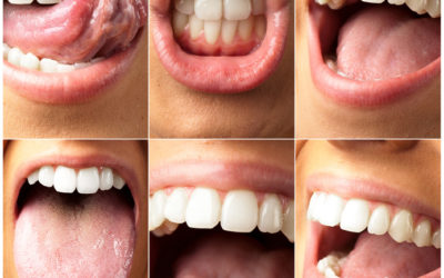 Why Do People's Gums Bleed?