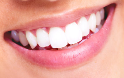 IN-OFFICE VS OVER THE COUNTER TEETH WHITENING