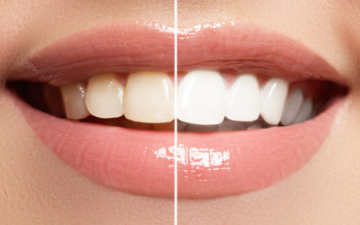 Kick Off The New School Year With Teeth Whitening Treatments
