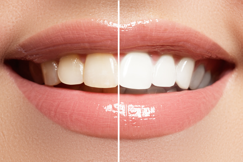 In-Office Teeth Whitening for the Holidays in Murfreesboro
